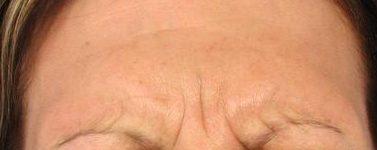 Glabella Before Botox
