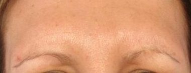 Glabella Lines 2 weeks after Botox