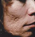 acne1 (1)