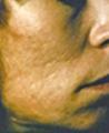 acne1 (2)