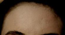 acne2 (1)