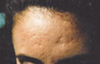 acne2 (2)