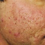 acne3 (1)