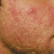 acne3 (2)