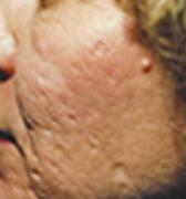 acne4 (1)