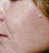 acne4 (2)