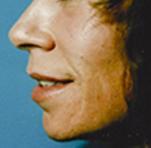 acne5 (1)