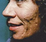 acne5 (2)