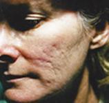 acne6 (1)