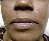 facial-fillers (1)