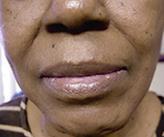 facial-fillers (2)