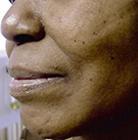 facial-fillers1 (2)
