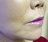 facial-fillers2 (1)