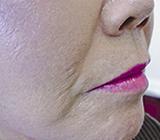 facial-fillers2 (2)