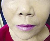 facial-fillers3 (1)