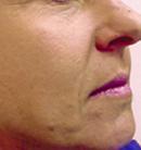 facial-fillers4 (1)