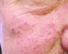lesions1 (1)
