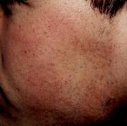 moler2 (1)