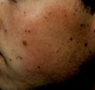 moler2 (2)