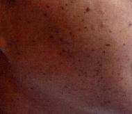 moler3 (2)