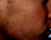 moler4 (2)