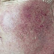 Facial veins caused by excessive sun exposure