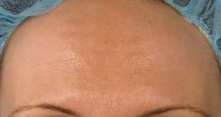 After pre-treatment with a cream to calm down the patient's melanocytes and one facial peel Treatment performed by Victoria Motazedi