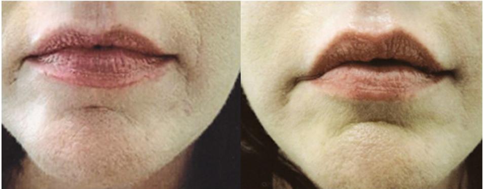Lip filler by Robert T. Motazedi, MD