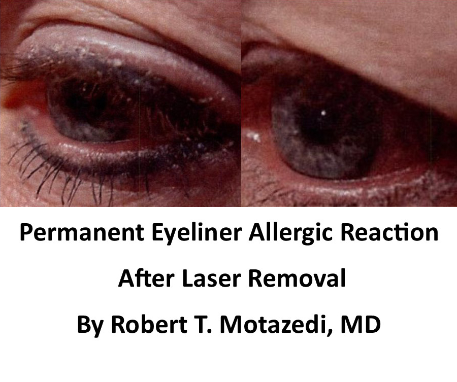 Before And after removal of eyeiner allergy