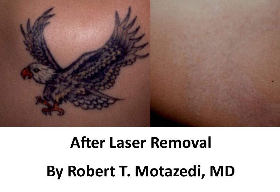 Eagle tattoo removal before and after