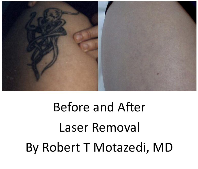 tattoo removal before and after with acred
