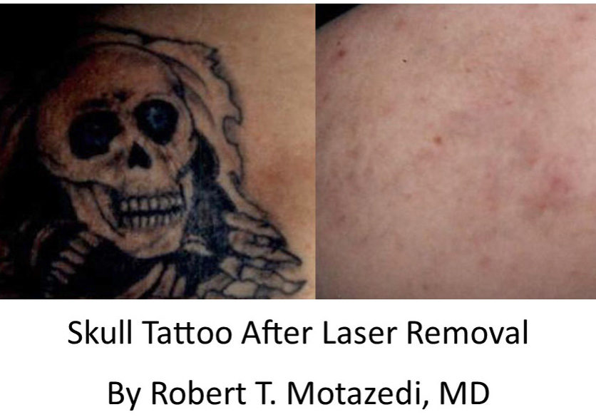 Skull Tattoo before and after